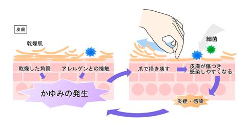 原因 アトピー アトピー性皮膚炎の本当の原因