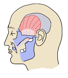 Hayashi A, Labbé D, et al: Experience and Anatomical Study of Modified Lengthening Temporalis Myoplasty for Established Facial Paralysis  J Plast Reconstr Aesthet Surg. . 68(1):63-70, 2015 より